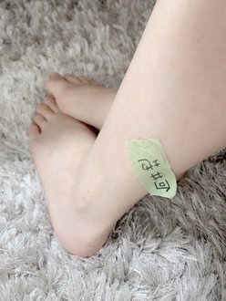 "AKB48向井地美音「メンバーあるある?」脚に""アレ""が貼り付いた写真を公開の画像"
